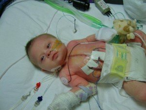 Baby Zoe after heart surgery in intensive care