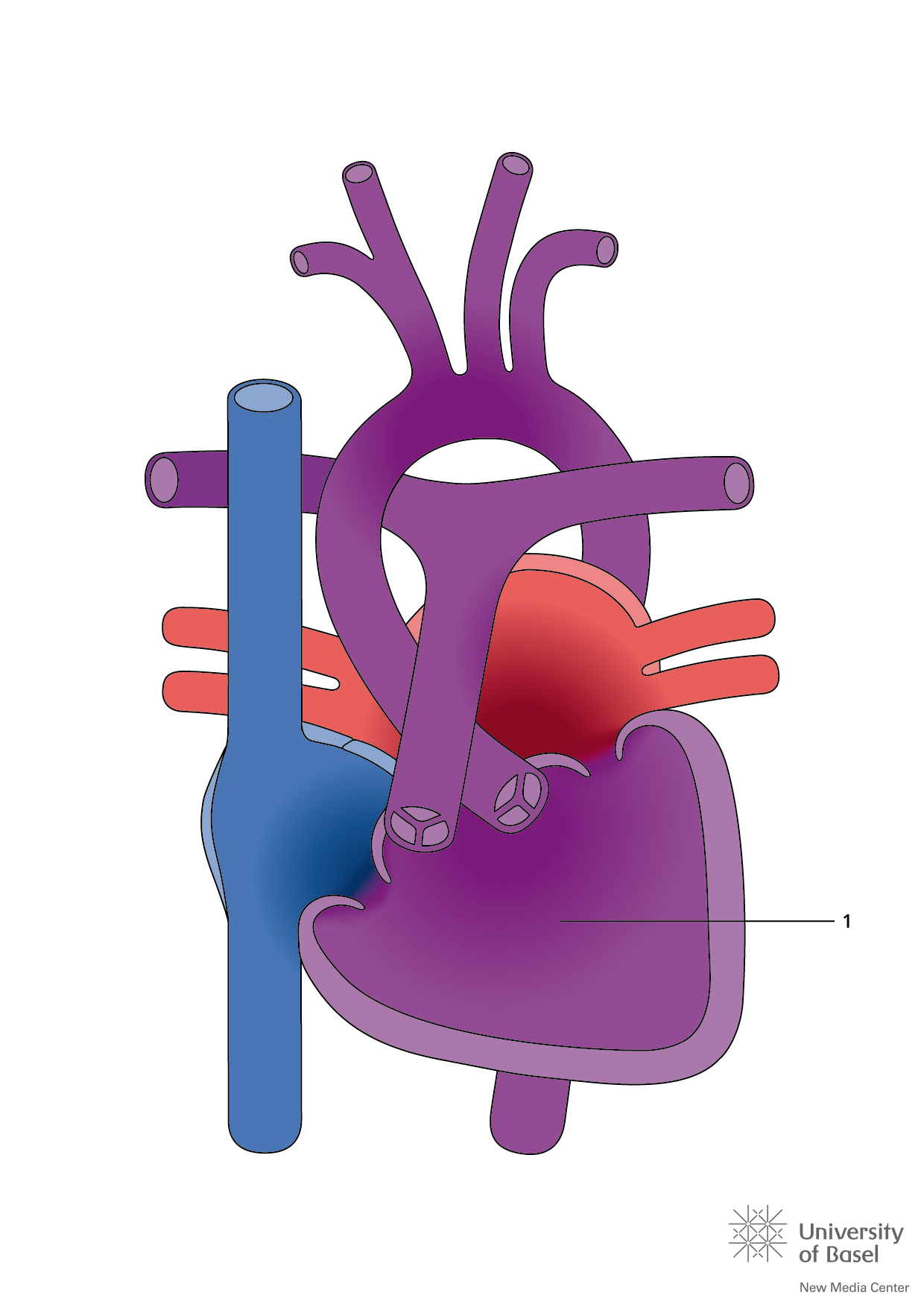 Single Ventricle Defects   Tiny Tickers